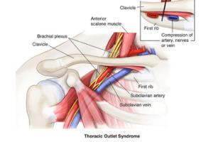 Skizze - Nacken und Kopfschmerz Ursache